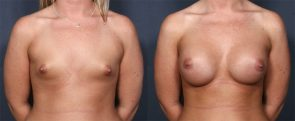 Dr. Brahme Breast Augmentation 3