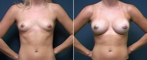 Dr. Brahme Breast Augmentation 6