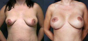 Dr. Brahme Breast Augmentation with Lift