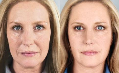 how to get rid of sculptra nodules