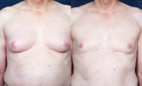 Dr. Roark Male Breast Reduction 1