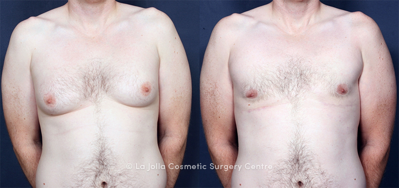 Dr. Brahme Male Breast Reduction 1