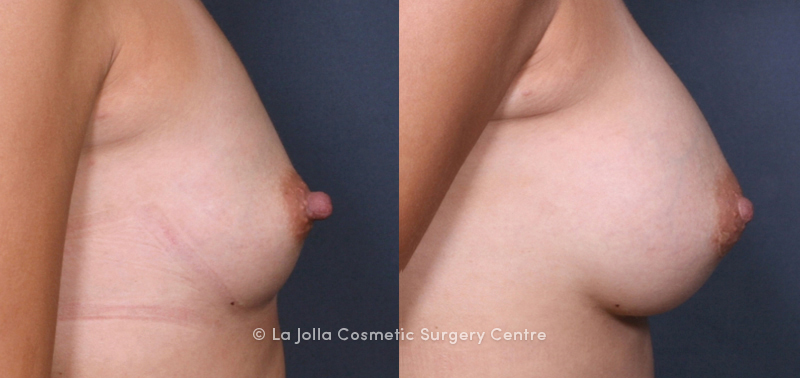 Dr. Brahme Nipple Reduction