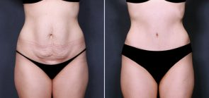 Dr. Brahme Tummy Tuck 613