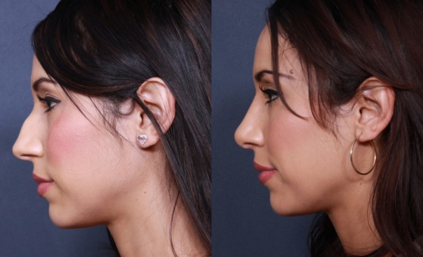 How Long Does Swelling Last After A Nose Job Plus 4 Other Questions You Have About Rhinoplasty La Jolla Cosmetic Surgery Centre