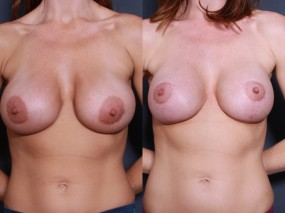 Dr. Roark Breast Augmentation Revision