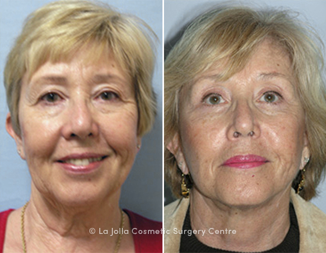 LJCSC Browlift Patient Photo