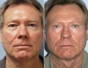 Dr. Smoot Face Lift