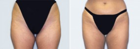 Dr. Smoot Liposuction