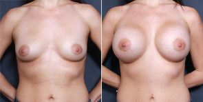 Dr. Brahme Breast Augmentation