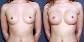 Dr. Smoot Breast Augmentation