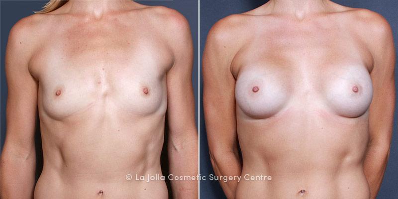 Dr. Saltz Breast Augmentation