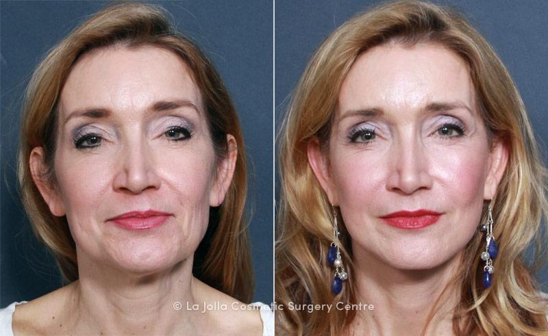 LJCSC Mini Facelift Patient Photo
