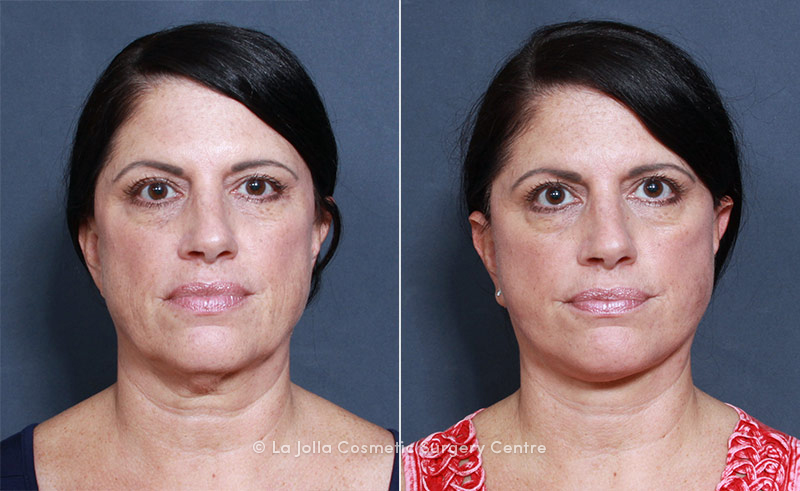 LJCSC Neck Liposuction Patient Photo