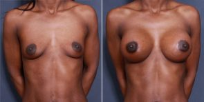 Dr. Roark Breast Augmentation with Lift