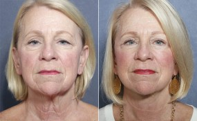 Dr Brahme Facelift, Neck Lift, Eyelid Lift