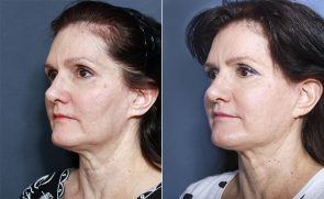 Dr Smoot Facelift, Forehead Lift, and Neck Lift with THERMITight™