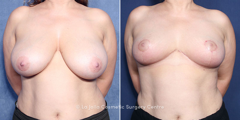 Dr. Smoot Breast Reduction
