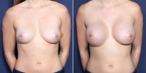 Dr. Smoot Breast Augmentation with Inverted Right Nipple Correction