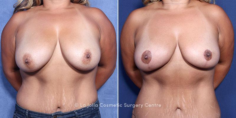 LJCSC Breast Lift Patient Photo