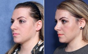 Dr. Wheeler Rhinoplasty