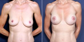Dr. Smoot Breast Augmentation with Lift