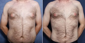 Dr. Brahme Gynecomastia and Liposuction