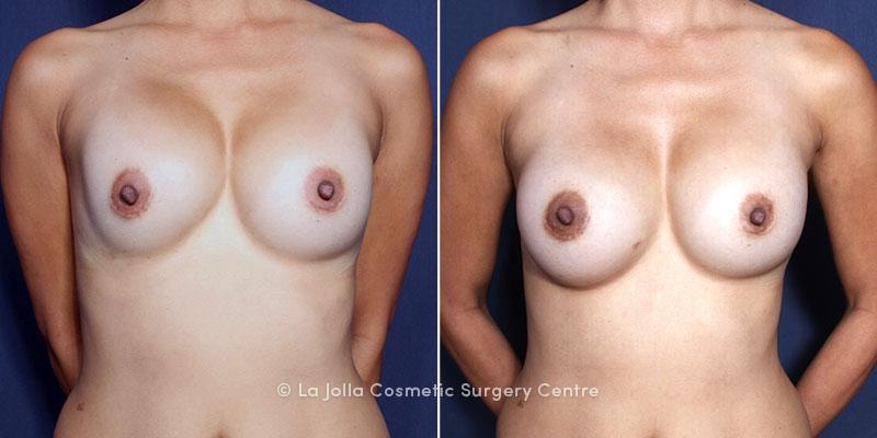 Breast implant in louisiana