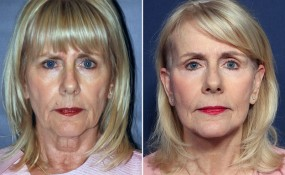 Dr. Wheeler Facelift with multiple procedures