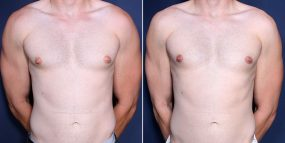 Dr. Wheeler Male Breast Reduction