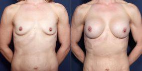 Dr. Roark Breast Augmentation
