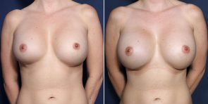 Dr. Brahme Breast Augmentation Revision