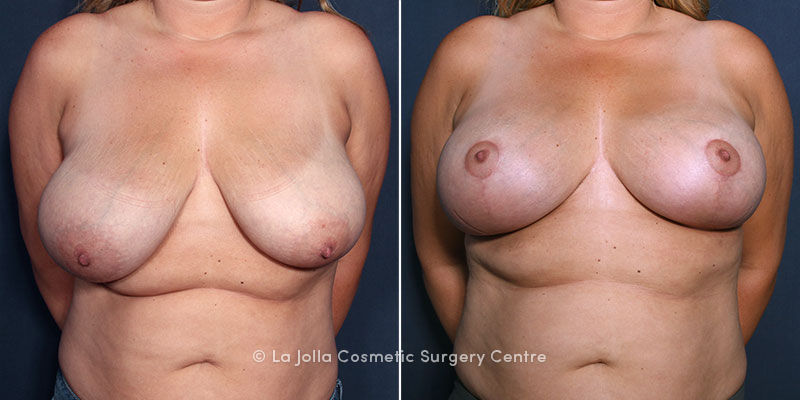 LJCSC Breast Lift Patient Photo