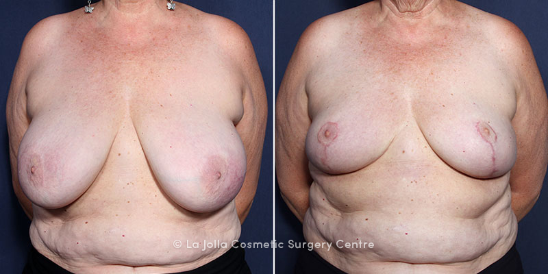 Dr. Wheeler Breast Reduction