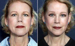 Dr. Brahme Facelift, Neck Lift, Eyelid Lift