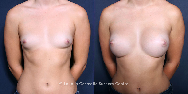 Augmentation breast jolla la surgery