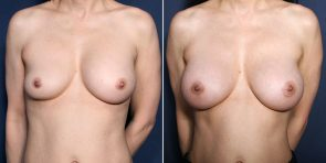 Dr. Smoot Breast Augmentation Revision