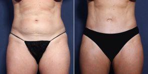 LJCSC Liposuction Patient Photo