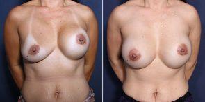 Dr. Roark Breast Augmentation Revision