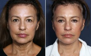 LJCSC Facelift Patient Photo