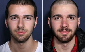 LJCSC Restylane Lyft Patient Photo