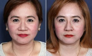 LJCSC Feminine Rejuvenation Patient Photo