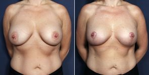 Dr. Smoot Breast Implant Replacement with Lift