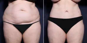 Dr. Wheeler Tummy Tuck and Liposuction