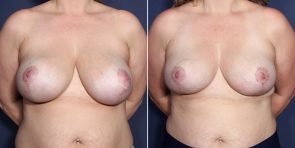 LJCSC Breast Augmentation Revision Patient Photo