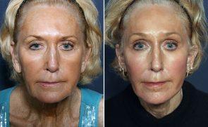 LJCSC Face Patient Photo