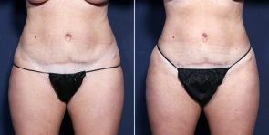 LJCSC Liposuction Patient Photo