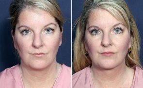 LJCSC Neck Liposuction Patient Photo