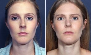 LJCSC Juvederm Patient Photo