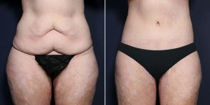 LJCSC Tummy Tuck Patient Photo